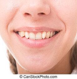 broad smile - bad crooked teeth, female mouth closeup