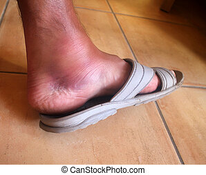 broken ankle, foot man