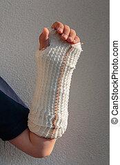 Broken Arm in Gypsum of Little Caucasian Boy