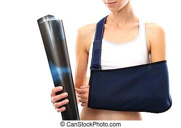 Broken arm, plaster cast
