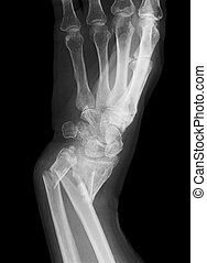 An x-ray of a forearm broken in both the Radius and the Ulna bones