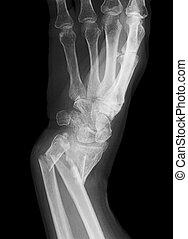 Broken forearm - An x-ray of a forearm broken in both the...