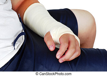 Broken hand in plaster cast with bandages, red, swollen fingers after an operation to fix the bones in place.