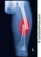 broken human thigh x-rays image ,lelf leg fracture
