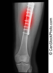 broken human thigh x-rays image with implant ( plate and...