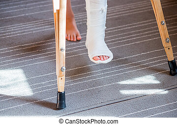 Broken leg in cast of unrecognizable little child. Young girl in orthopedic cast on crutches in home. Child with a broken leg on crutches, ankle injury. Bone fracture and ankle fracture in children.