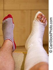 Broken leg in gypsum - Broken ankle in hwite gypsum