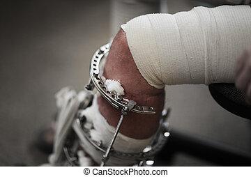 Broken leg in metal Ilizarov apparatus. Closeup, shallow DOF...