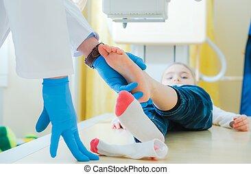 Broken Leg X Ray Scanning - Broken Leg of Little Children X...