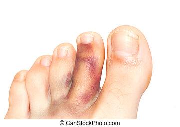 Broken toe isolated on white.