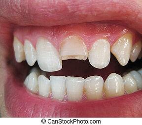 Broken tooth. Broken upper incisor in a man mouth. Man shows...