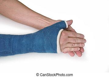 Broken wrist, arm with a blue fiberglass cast
