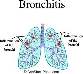 bronchitis., de, anatomische structuur, van, de, menselijk, lung., vector, illustratie, op, vrijstaand, achtergrond