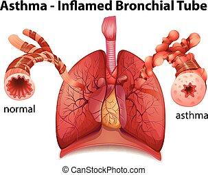 bronkial, astma