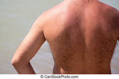 bronzage, homme, dos, peau rouge