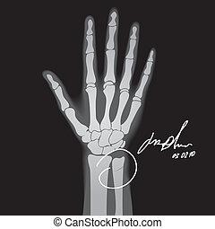 Brooken hand - Vector illustration of brooken hand. X-ray.