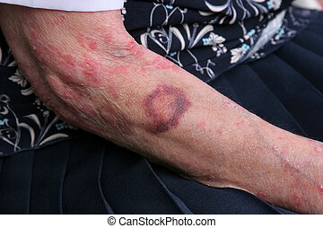 Bruising and sceriosis on the arm of an elderly female. The elderly have a tendency to bruise more easily than younger people.