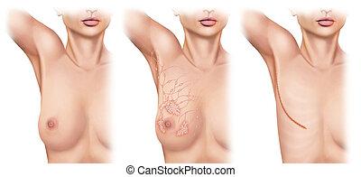 brustamputation, auf, brüste