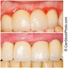 Buffing Teeth Tangent and with Shoulder - Difference of...