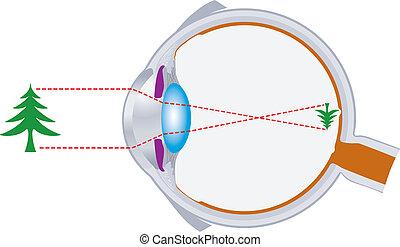 bulbo oculare, ottica, e, visione, lente, syst