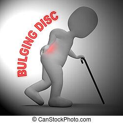 Bulging Disc Character Showing Back Chiropractor 3d Rendering