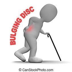 Bulging Disc Showing Back Chiropractor 3d Rendering