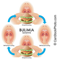 bulimia - medical illustration of the symptoms of bulimia