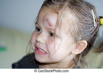 Bump - portrait of little girl with bump on her forehead