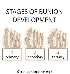 bunion development - human foot. vector illustration of...