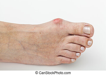 Bunion, isolated background - Closeup of a bunion, hallux on...