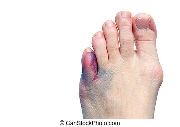 bunions, contusões, dedos pé, quebrada