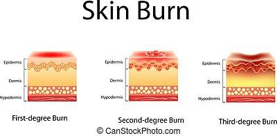 burn., trois, illustration, peau, burns., vecteur, degrés,...