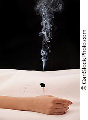 Burning acupuncture needle with black background