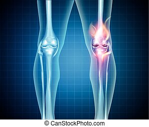 Burning knee, painful knee and normal knee joint, abstract...