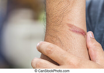 Burning skin on arm, Injury from fire