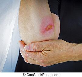 Burns on forearm
