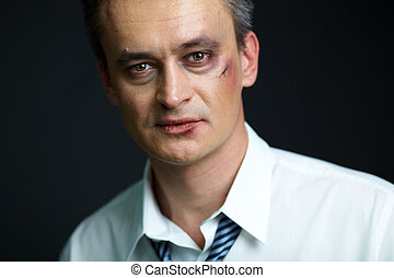 Business fighter - Portrait of businessman with bruise ...