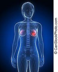 cáncerde los senos