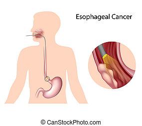 câncer, esophageal, eps10