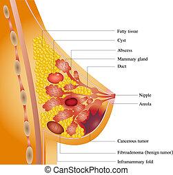 câncer peito