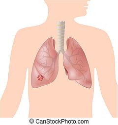 câncer pulmão, eps10