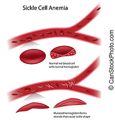 célula, enfermedad, eps10, hoz