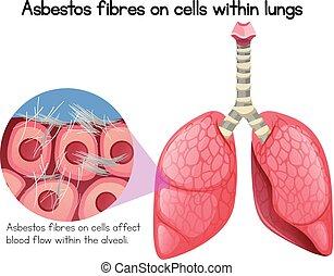 células, pulmones, asbesto, fibras, dentro