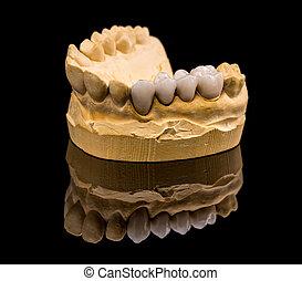 céramique, dentiers
