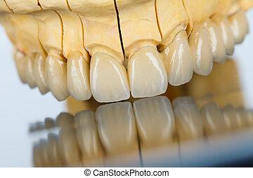 céramique, dents, -, dentaire, pont