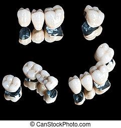 céramique, ensemble, dents
