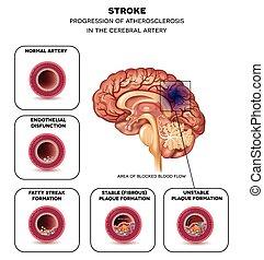 cérebro, apoplexia, artéria