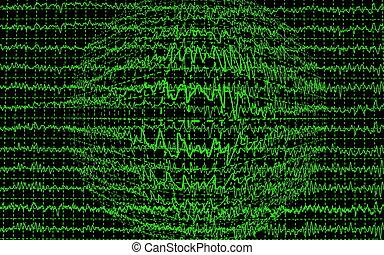 cérebro, eeg, encephalogramme, onda
