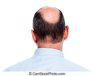 cabelo, calvo, loss., man.