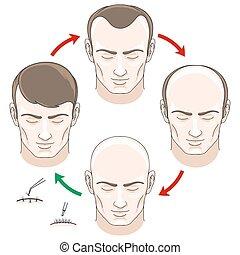 cabelo, fases, transplantation, tratamento, perda